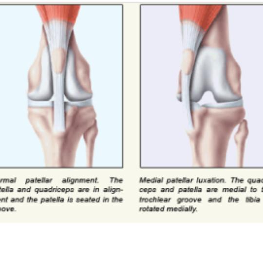 膝蓋骨內側脫位矯正手術後復健的重要性