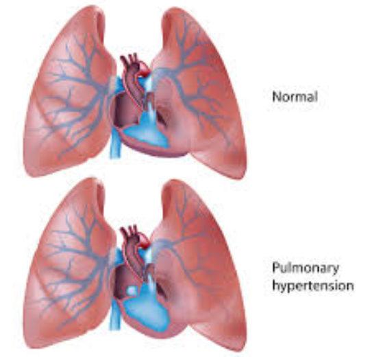 在鎮定的情況下以心臟超音波估算狗狗肺動脈壓,會高估肺動脈壓
