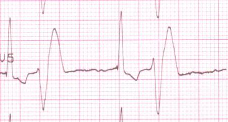 狗胃擴張及扭轉與心臟功能